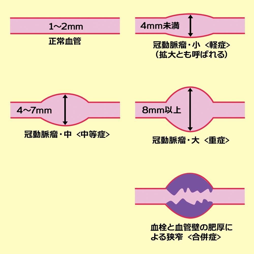 冠動脈瘤の説明